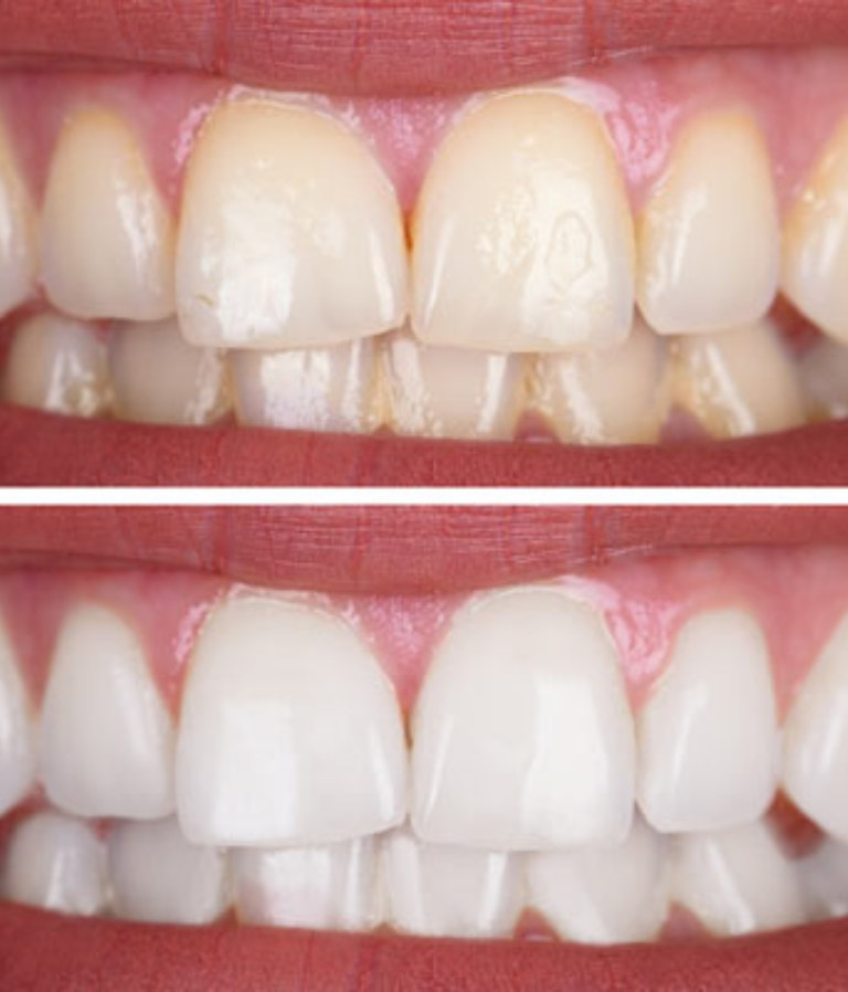 Teeth Whitening near Houston